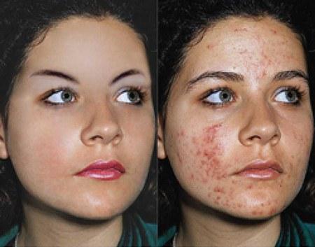 Jenis kulit menyebabkan jerawat