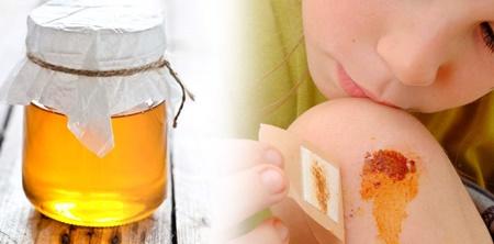 Gunakan madu untuk menghilangkan bekas luka
