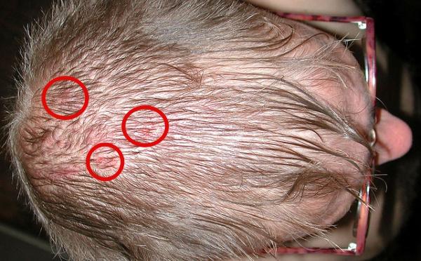 Menyembuhkan jerawat di kulit kepala