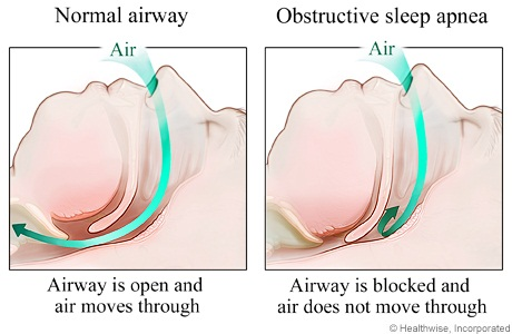 Penyebab sleep apnea