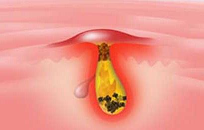 Faktor hormonal dapat menyebabkan jerawat