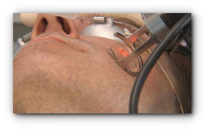 Perawatan laser mengatasi jerawat dengan cepat