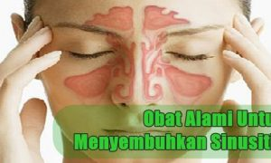 Obat tradisional untuk menyembuhkan sinusitis