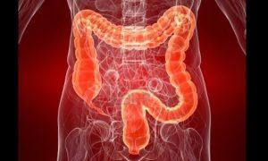 Obat tradisional untuk membersihkan racun dari usus besar manusia