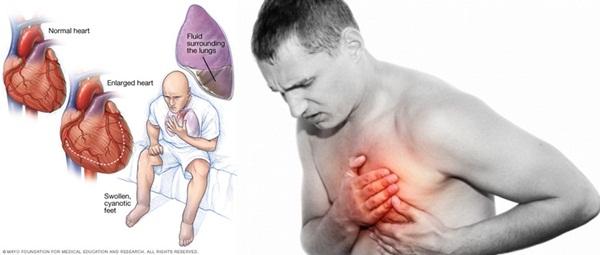 Cara mengatasi serangan jantung saat sendirian