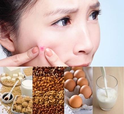 8 Makanan Penyebab Jerawat di Wajah yang Harus Dihindari