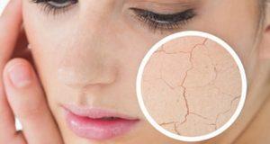 Tips merawat kulit wajah kering