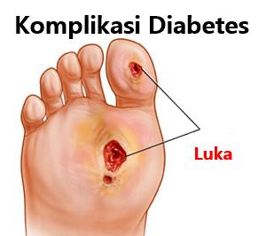 Komplikasi diabetes pada kaki harus diamputasi