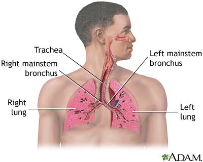 Jenis penyakit paru-paru