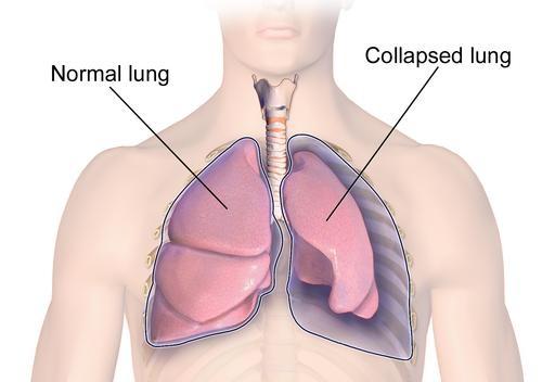 Macam-macam penyakit pada paru-paru