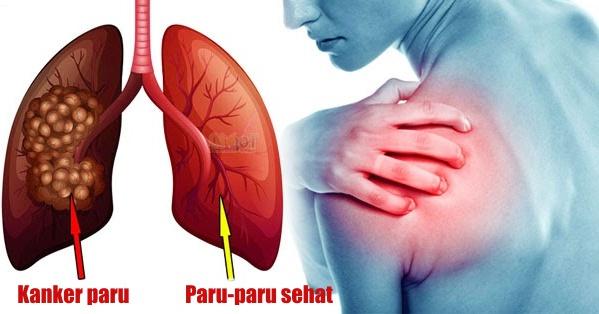Cara mencegah penyakit paru-paru