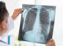 Penyebab, gejala dan cara mengobati penyakit paru-paru basah