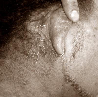 Cat rambut berbahaya bagi pengidap alergi