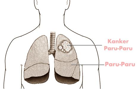 Kanker paru-paru dalam tubuh manusia