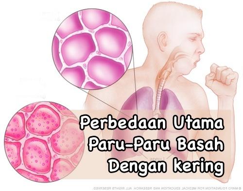 Hasil gambar untuk penyebab sakit paru paru basah