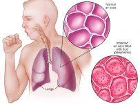 Perbedaan paru-paru basah dengan kering