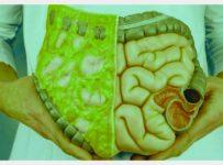 Gejala diabetes melitus tipe 2